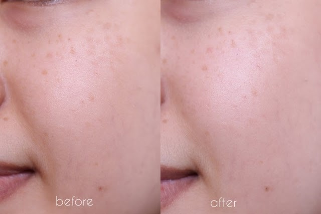 Before After BIO-ESSENCE GOLD WATER REVIEW RAHMALIA-6